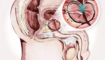Что такое простата? Ее функции и некоторые общие проблемы