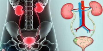 Симптомы и диагностика инфекции мочевыводящих путей.