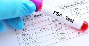 Что такое PSA?
