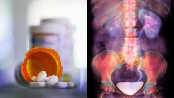 Антибиотики могут повысить риск развития камней в почках: исследования