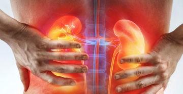 Пиелонефрит (инфекция почек) симптомы, причины, лечение