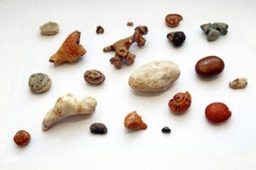 Что такое камни в почках и что заставляет их образовываться в первую очередь