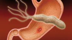 Что такое язва желудка, симптомы, причины и лечение